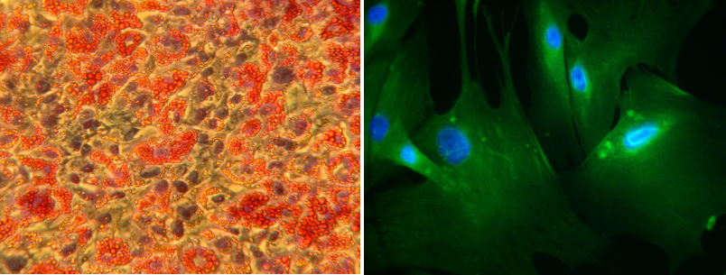 Fig. 4: Studying the interactions between adipocytes and vascular cells (cell-cell interactions): Adipocytes are isolated from human perivascular adipose tissue (left, with oil red O staining) and co-cultured with human vascular smooth muscle cells isolated from the underlying vessel (right).