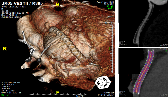 Fig. 6: The Oxford Academic Cardiovascular CT Programme:We use cardiovascular computed tomography to phenotype patients with a wide range of cardiovascular diseases. We participate in various clinical studies, supporting research within the partnership of the University of Oxford and the Oxford University Hospitals NHS Foundation Trust. We also participate in multicentre clinical studies and we collaborate closely with various institutions in UK and abroad.